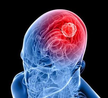 Как избавится от рака мозга народными средствами