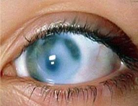 Причины и симптомы глаукомы.Народные средства